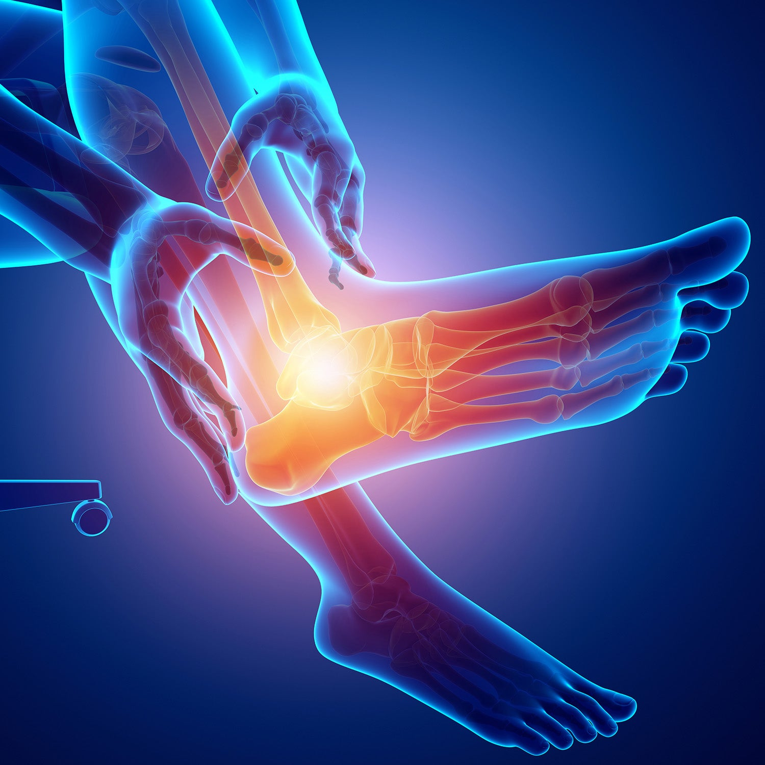 So you've injured your Ankle? 3 Proven Methods for Boosting your Recovery