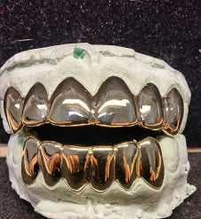 Solid Gold Teeth
