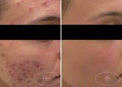 Before & After Pics: High-Powered Light Therapy for Acne