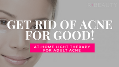 Get Rid of Acne for GOOD - Light Therapy Will Change How You Treat Your Adult Acne