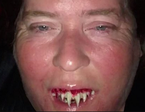 Alabama Woman Zombie Teeth