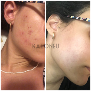 Kaloneu Acne & Scarring Skin Care Bundle | 100% Organic - Kaloneu