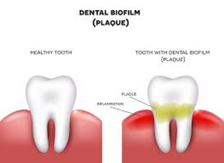HOW DO YOU REMOVE BIOFILM FROM TEETH NATURALLY, THE BENEFITS OF ZINC AND BLACK SEED OIL