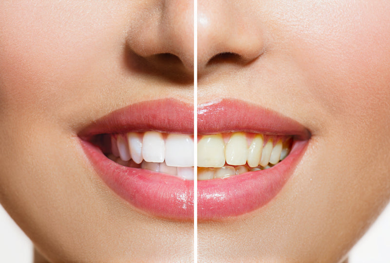Whiten Your Teeth Naturally and Safely