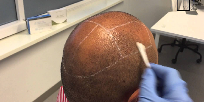 Scalp Preparation