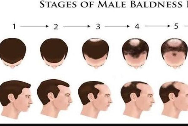 pattern baldness in males