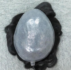 Scalloped Front Skin Hair Replacement System