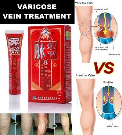 Varicose Veins Cream removal varicose veins treatment Anti Foot Leg Vasculitis - 1stAvenue