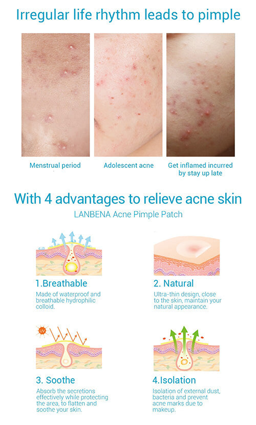 LANBENA Acne Pimple Patch(Daily use)-Skin care-1stAvenue