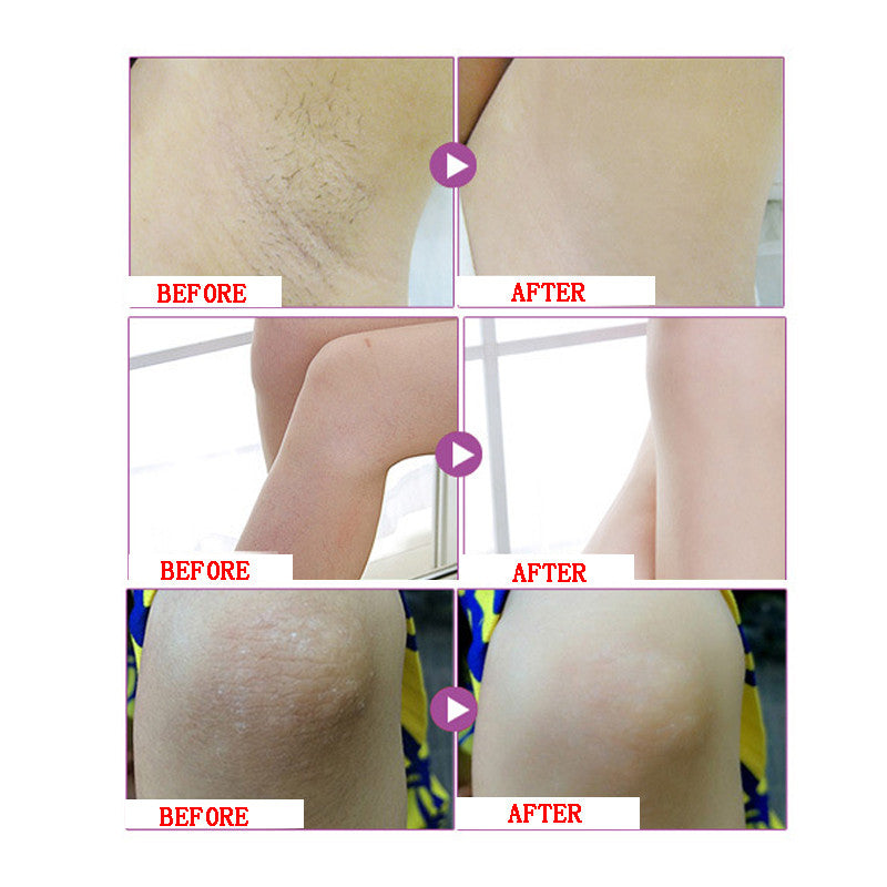 Aichun Beauty Skin Armpit Whitening Cream Skin Lightening Bleaching Cream-Skin care-1stAvenue