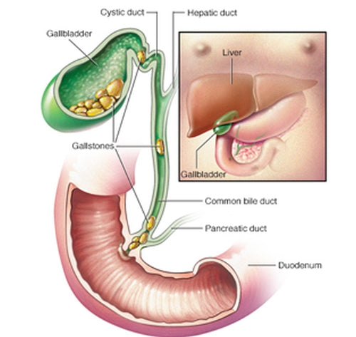 How to Get Rid of Gallstones  - And Avoid Surgery
