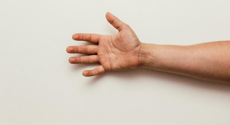 The affected limb post Stroke