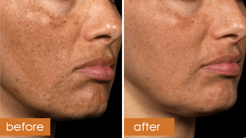 Fraxel Dual 1927 / 1550 Laser Resurfacing Treatment