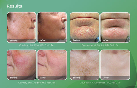 IPL Laser Treatments for Brown Spots or Rosacea