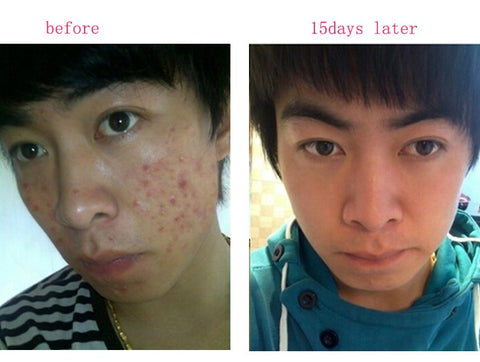 acne treatment-nur76