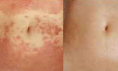Application of anti-inflammatory RG92 in preventing the relapse of atopic dermatitis