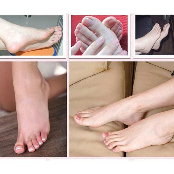 Foot Peel - dead skin removal