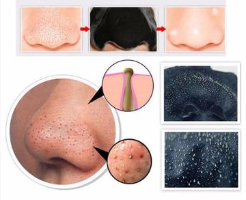 Blackhead Peel Off Masks, [TopTrends_4U]