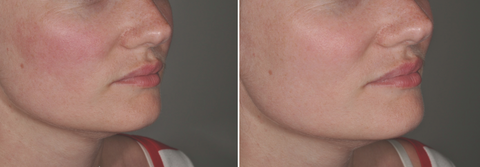 Woman's cheek red before using Kantic Mask, cheek less red after using mask