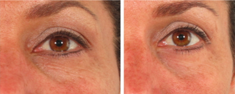Woman's under-eye baggy before using rejuvenating eye balm, less baggy after two weeks use