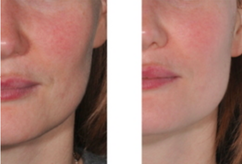 Woman's cheek less pigmented after Alchimie Forever Brightening peel use