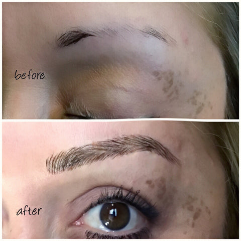 Brow Reconstruction