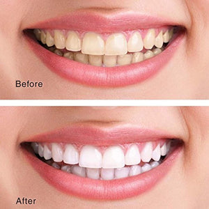 EMOVES BREATH Best Natural Tooth Whitener Product