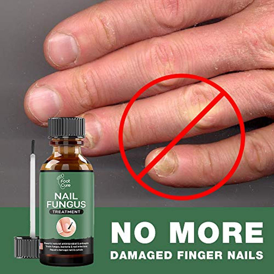 Cure Athlete's Foot & Infected Nails with Our Fungus Treatment