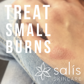 How to use Salis products to treat Small Burns