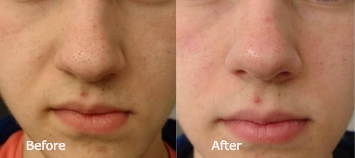 Before and After with the Blackhead Removal Mask