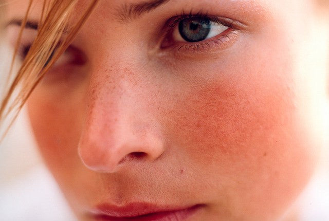 How can I help reduce the appearance of rosacea?