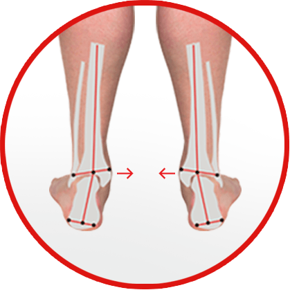 flat feet or excessive pronation