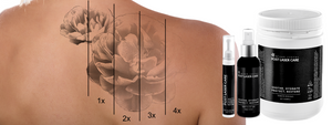 Soothes, cools, and treats the skin following laser tattoo removal