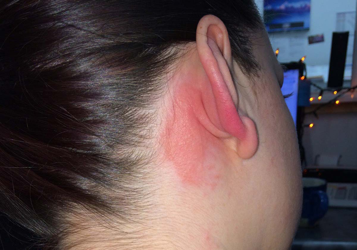 Example patch test reaction found online