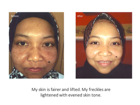 eumora soap testimonial for freckles
