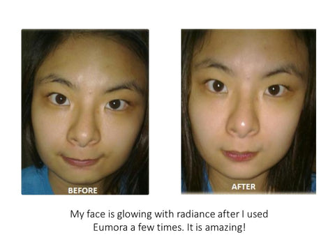 eumora soap testimonial for radiant face