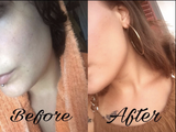 skinkissed before and after shots
