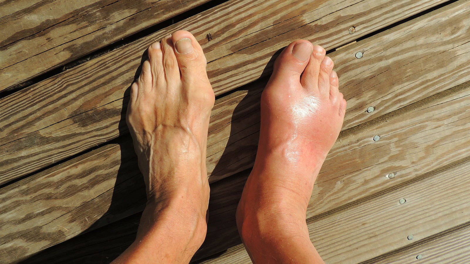 picture of old man's feet, red and swollen due to gout