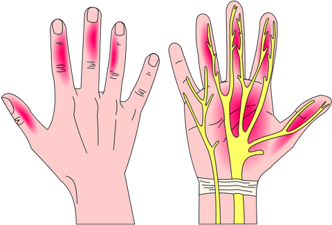 First Signs of Carpal Tunnel Syndrome numbness and pain in fingers, palm and wrist