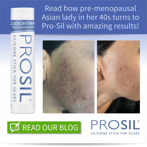 Pre-menopausal Asian lady in her 40s with acne scarring turns to Pro-Sil scar stick with amazing results!