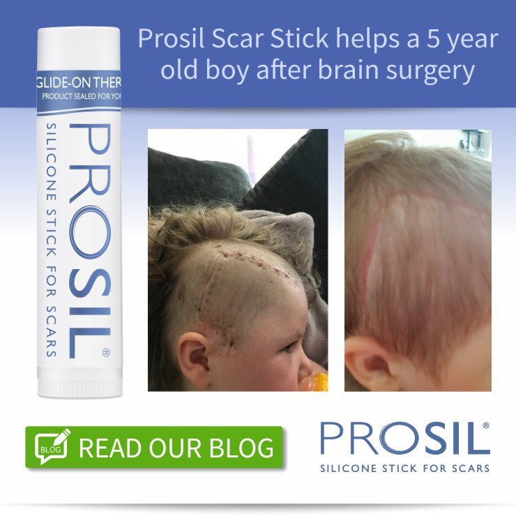 Prosil Scar Stick helps a 5 year old boy after brain surgery