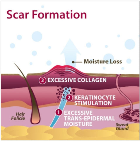 Scar formation info