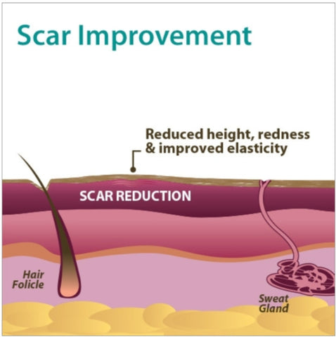 Scar Improvement info