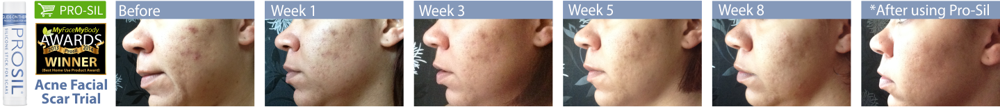 Acne Facial scars. Show week 1 to week 10 using Pro-Sil