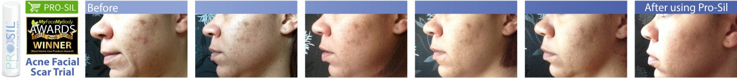 Pro-Sil Acne Facial Scar Trial before and after