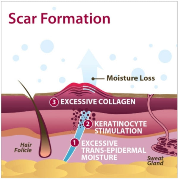 Scar Formation infographic picture