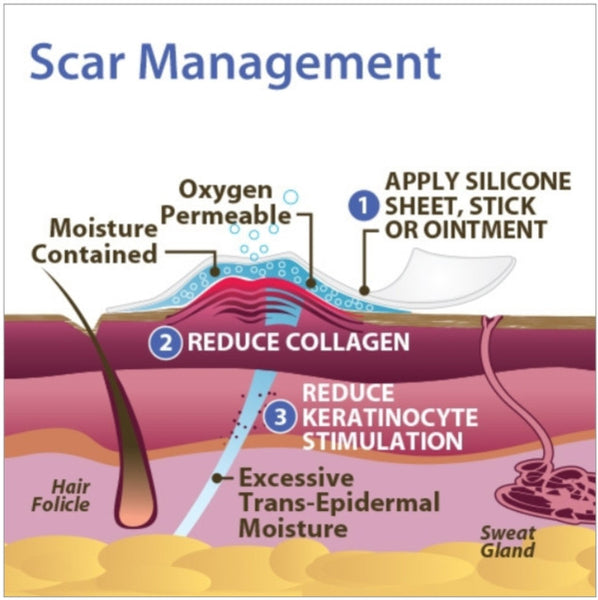 Scar Management infographic picture