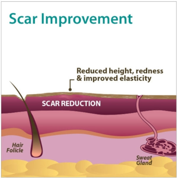 Scar Improvement infographic picture