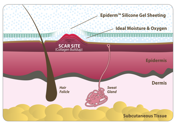 How a scar heals using Epi-Derm