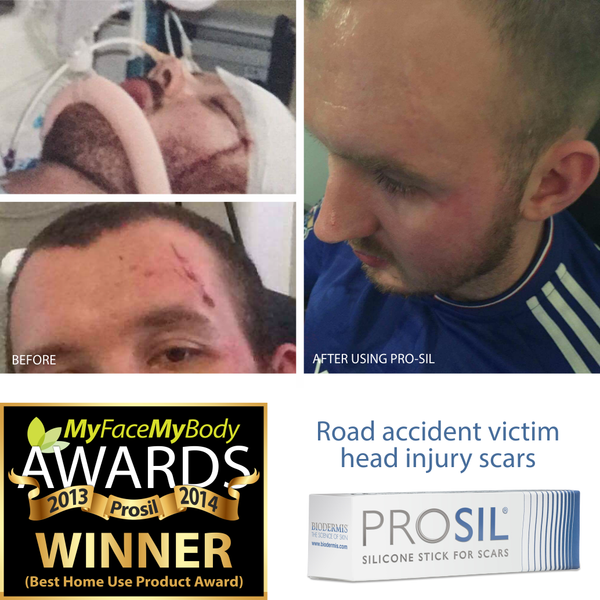 Road accident victim head injury after using Prosil
